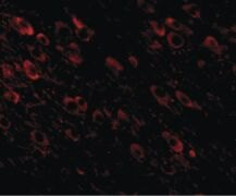 beta Amyloid Antibody (PA5-20711)