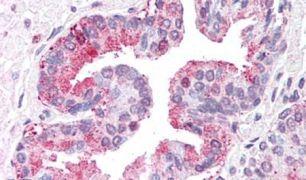 ARTS1 Antibody (PA5-33518)