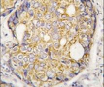 ASK1 Antibody (PA5-15090)