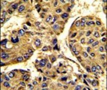Asporin Antibody (PA5-13553)