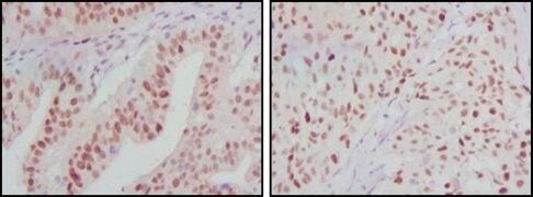 ATP2C1 Antibody (MA5-15592)