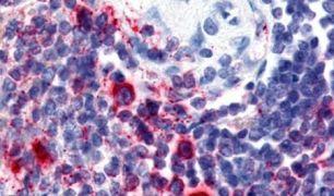 Attractin Antibody (PA5-32667)