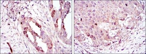 Aurora A Antibody (MA5-15804)