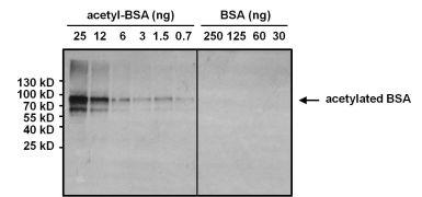 Acetyl Lysine Antibody (MA1-2021)