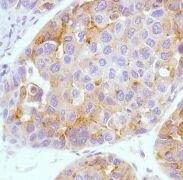 AFP Antibody (MA5-16321)