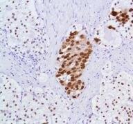 Androgen Receptor Antibody (MA5-16412)