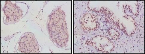 Androgen Receptor Antibody (MA5-15598)