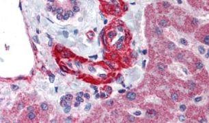 Angiotensin II Antibody (PA5-33339)