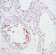 APAF1 Antibody (PA5-32266)