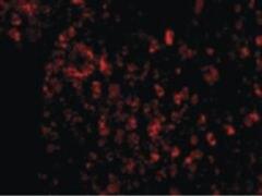 AVEN Antibody (PA5-20288)