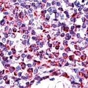 BAK Antibody (PA5-32268)