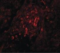 BCAS4 Antibody (PA5-20907)