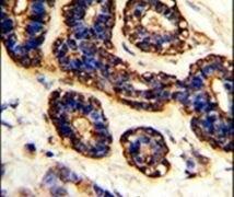 Bestrophin 2 Antibody (PA5-26253)