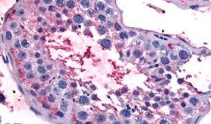 Bestrophin 2 Antibody (PA5-33363)
