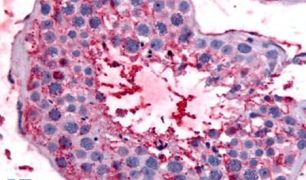 Bestrophin 2 Antibody (PA5-33364)