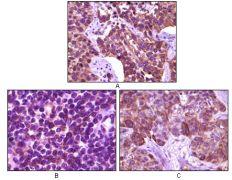 BLK Antibody (MA5-15302)