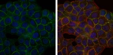BLNK Antibody (MA5-15868)