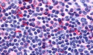 LTB4R2 Antibody (PA5-33911)