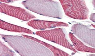 BIKE Antibody (PA5-33369)