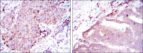 BMPR2 Antibody (MA5-15826)