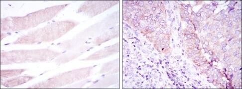 BMPR2 Antibody (MA5-15827)