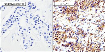 BRCA1 Antibody (MA1-137)