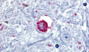 Bombesin Receptor 3 Antibody (PA5-32675)