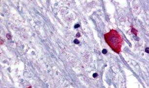 Bombesin Receptor 3 Antibody (PA5-32680)