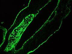 Cytokeratin 1 Antibody (MA1-06312)