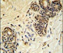 PPP1R35 Antibody (PA5-25117)
