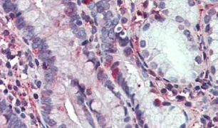C8orf55 Antibody (PA5-32686)