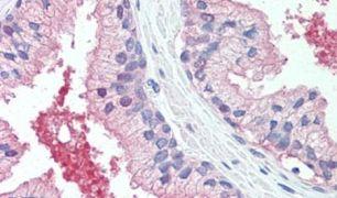 CADM2 Antibody (PA5-32687)