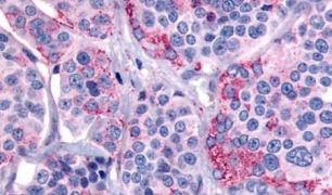 Calcitonin Receptor Antibody (PA5-32688)