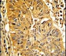 Caldesmon Antibody (PA5-13559)