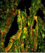 CAPZA1 Antibody (PA5-14399)