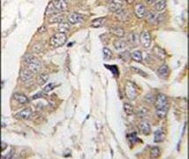 CASC3 Antibody (PA5-14121)