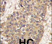 Caspase 6 Antibody (PA5-11390)