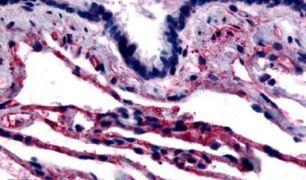 Caveolin 1 Antibody (PA5-32690)