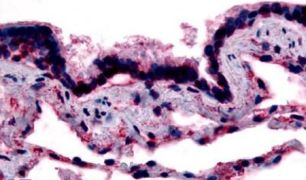 Caveolin 1 Antibody (PA5-32691)