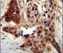 CCDC122 Antibody (PA5-24342)