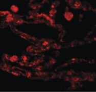 CCDC69 Antibody (PA5-20935)