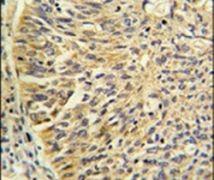 TCP-1 gamma Antibody (PA5-12523)