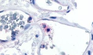CD11c Antibody (PA5-32885)