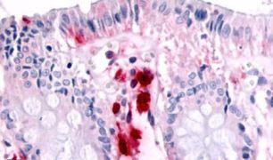 RON Antibody (PA5-32933)