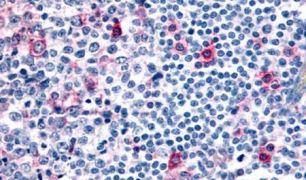CCR8 Antibody (PA5-33403)