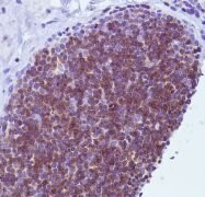 CD1a Antibody (PA5-32311)