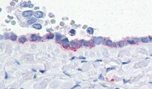 CD203c Antibody (PA5-32749)