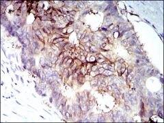 IGF1R beta Antibody (MA5-15354)