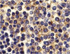 BCMA Antibody (PA5-19973)