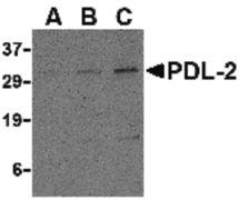 CD273 Antibody (PA5-20344)
